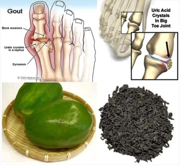 Have You Tried the Gout Green Tea Remedy? N809