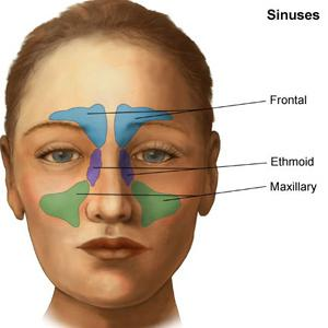 Persistent Sinus problems Natural-remedies-sinusitis93
