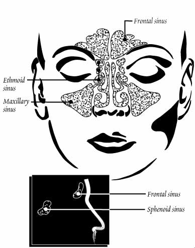 Why Post Nasal Drip Occurs So Rampantly (When There  Normalsinus