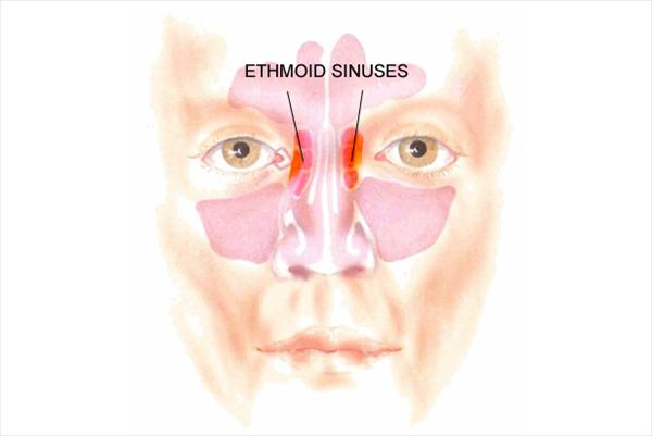 Being familiar with Ethmoid Sinus Better Nose-ethmoid-sinuses