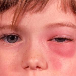 Treating Acute Sinusitis and Acute Sinusitis and Here  Orbital-cellulitis-in-acute-sinusitis9