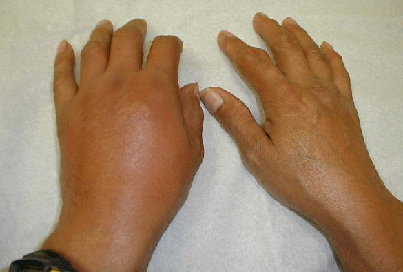 Gout Pain and a Review of Uricinex and is It Legitimate? Orig548