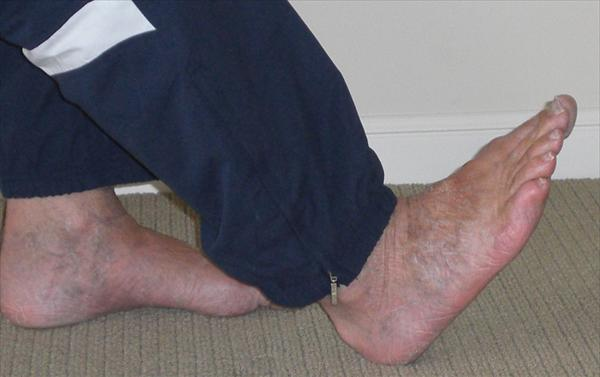 What It is and How to Treat It. Osteoarthritis-ankle