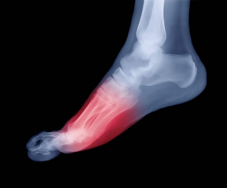 Quick Fix for Gout Pain-in-foot