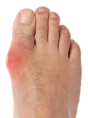 Uric Acid Levels, Detailed Information on Gout Photogallery-foot-health-full9