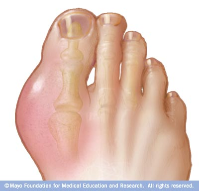 Causes of Gout Photos-of-gout-in-foot