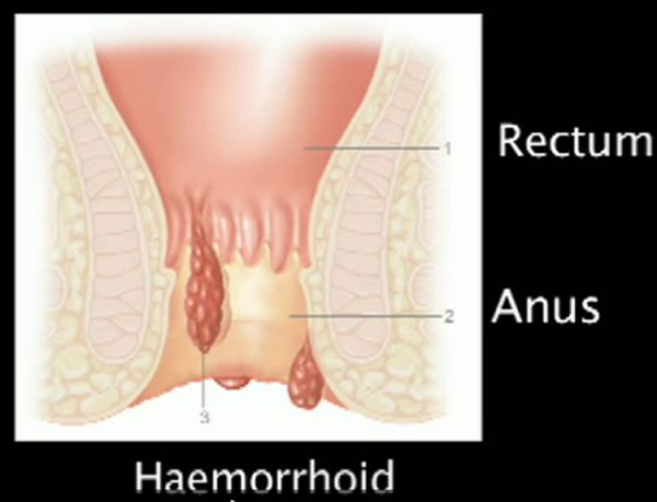 Get Rid of Hemorrhoids Picture-of-a-hemorrhoid1