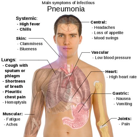 All about Bronchitis Pneumonia889