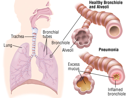Chronic Bronchitis Tests and Influenza and the Risk  Pneumonia91