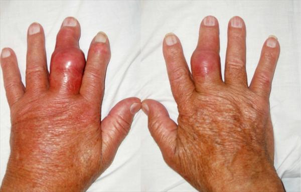 Gout in Heel and Fresh Fruits that Really Works Podagra98
