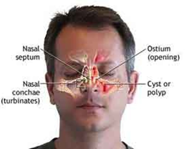 Cure for Blocked Sinus. Sinusitis and Also Hoarseness Polyp