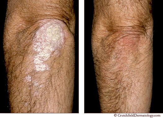 [Image: psoriasis-pictures.jpeg]