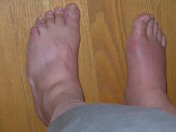 Attack Gout: Got Gout?  Attack Gout Before Gout Attacks Px-Gout-Advanced62