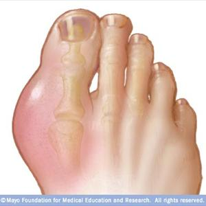 Oatmeal Uric Acid, What Things to Ward Off Along With Gout R-gout17