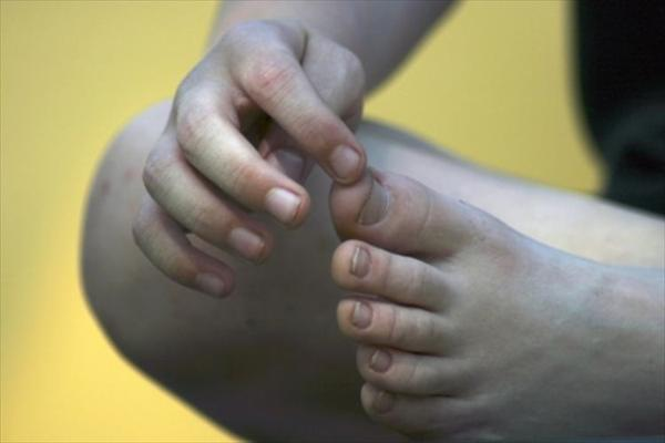 Gout and Recognizing the Symptoms of Gout Recognize-signs-gout-x
