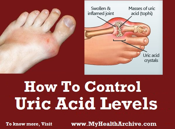 Uric Acid Control and Msm and Gout Have You Considered Reduce-uric-acid27