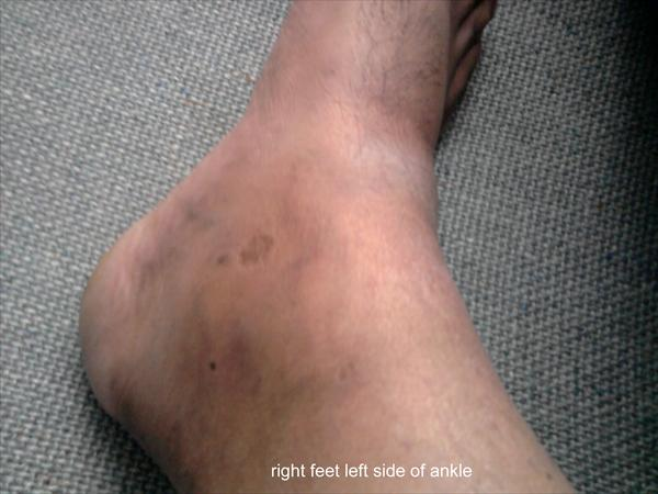 Gout Side Effects Right-feet-left-side-of-ankle