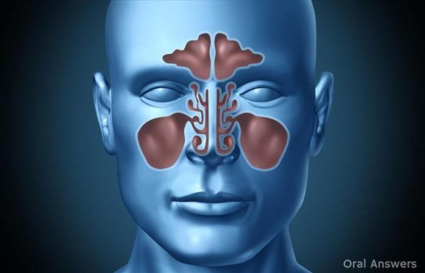 Sinus Infection and Description of the Sinus Infection Sinus-infection-causes-tooth-pain9