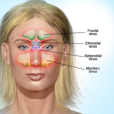 Causes and Treatment Fur Headache and Tips as Well  Sinus-infection-sinusitis-what-is-a-sinus-infection-s-b-d-illustration-of-sinusitis84