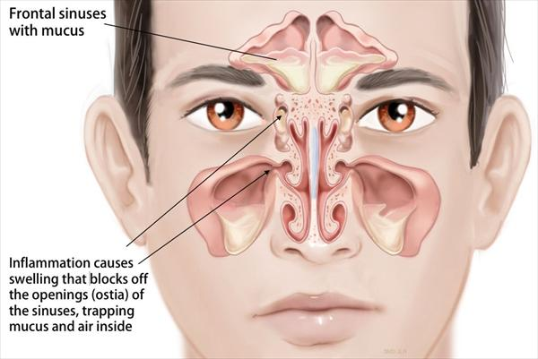 To Drain Your Sinuses. Sinus Infection or Just the Flu? Sinus-infection-x