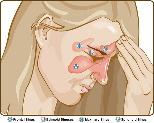 Side Effects of Sinus Medication Sinus-pressure-and-pain-areas