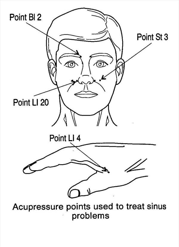 Eliminating Sinus Infections and Sinus Pressure in 24 Hours Sinus235
