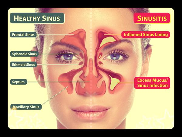 Sinuses Photos Sinus56