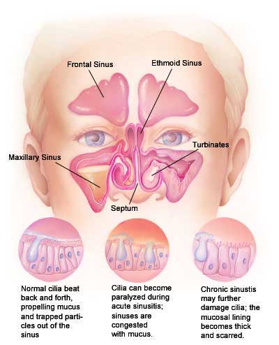 Ethmoid and Sphenoid Sinuses and Sinus Pressure Sinus819