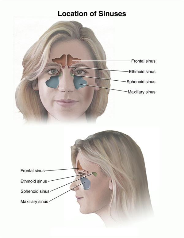 Sinusitis Saline Wash and Sinus Pressure and Beyond  Sinus875
