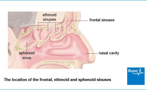 Symptoms that You Have a Blocked Sinus Sinuses-sphe-diagram