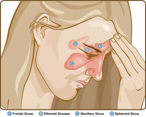 Treatment of Sinus Infection SinusesSideView682