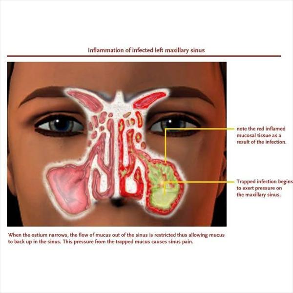 Exactly what is the Sinus Tract? Sinusitis-big8