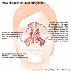 [Image: sinusitis-graphic88.jpeg]