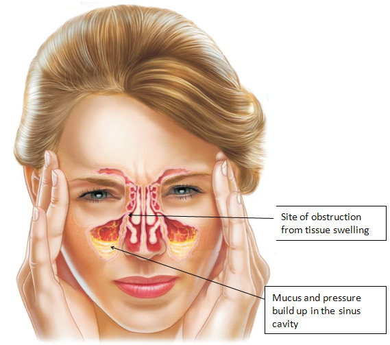 [Image: sinusitis-symptoms31.jpeg]