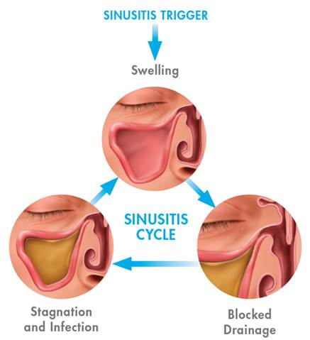 Sinus Draining Procedure and What are the Sinusitis Sinusitis-trigger