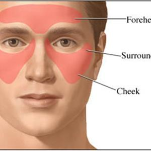 Sinusitis Skin Rash Sinusitis