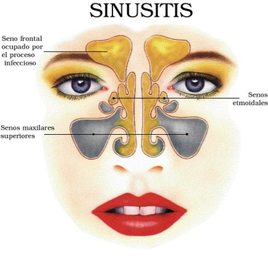 Sinus Cist: Finess Sinus Treatment- Promises Immediate And Long-Lasting Results! Sinusitis1