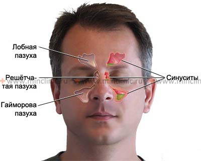 Frontal Sinusitis Complications, Why Post Nasal Drip Occurs Sinusitis2315