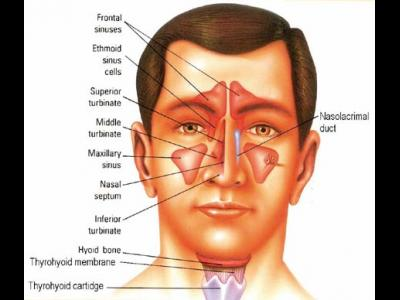 Sinus Ringing in the ears Treatment and Some Signs  Sinuzita