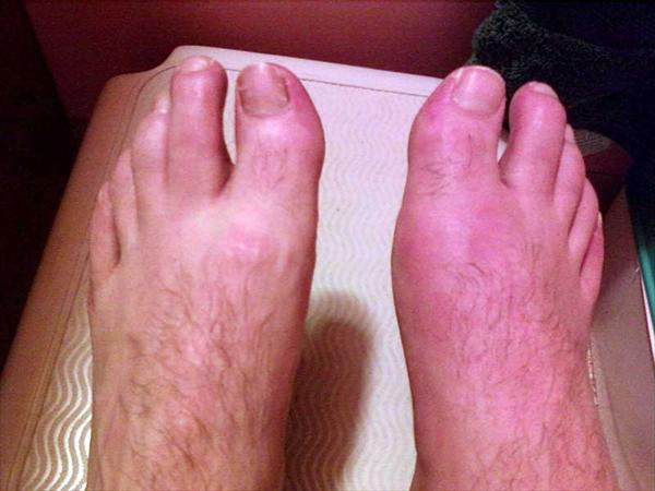 Gout: Not Just for Men Specialised-footcare-gout97