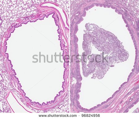 [Image: stock-photo-acute-bronchitis-inflammatio...mucus.jpeg]