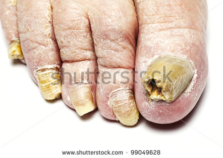 Sinus Fugus Virus Stock-photo-fungus-infection-on-nails-of-man-s-foot