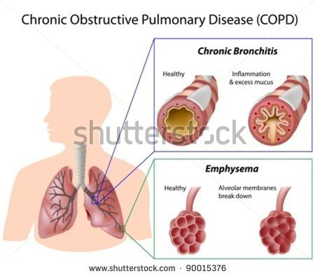 Pediatric Bronchitis Complications: Detailed Information  Stock-vector-chronic-obstructive-pulmonary-disease-copd