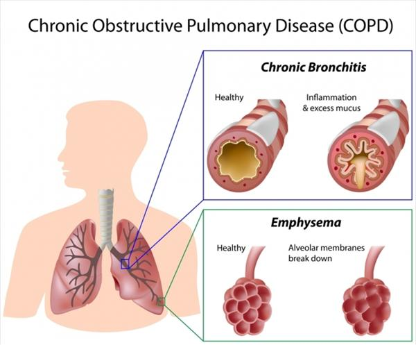 Chronic Bronchitis Heart Failure: Smoking-Related Illnesses Tai-chi-therapy-copd