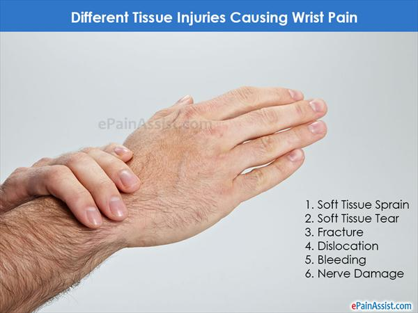 in Search of Healers for Joint Pain Tissue-injuries-causing-wrist-Pain