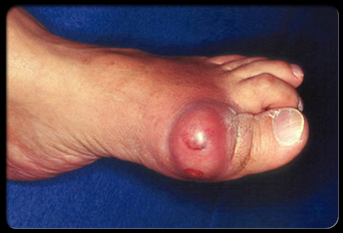 Gout and Pregnancy Tophaceous-gout