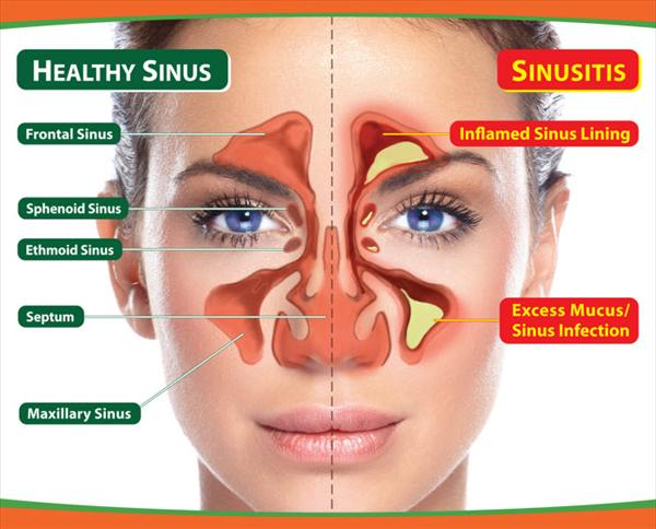 Severe Sinus Treat-sinusitis52