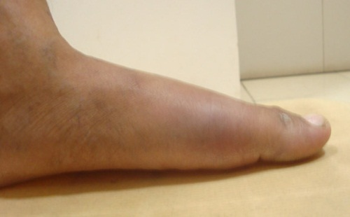 Gout and Gout: Its Symptoms and Levels Treatment-for-gout