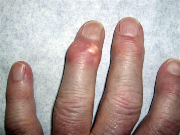 Gout Pain Relief. Review of Uricinex Upper-gout-toph10