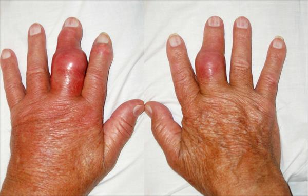 Natural Gout Remedies. Why You Should Make Strawberries Part Of Your Gout Diet Upper-toph-gout